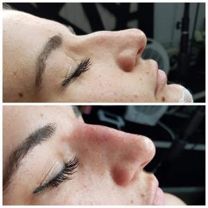 kosmetologia estetyczna 1