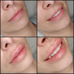 kosmetologia estetyczna 12