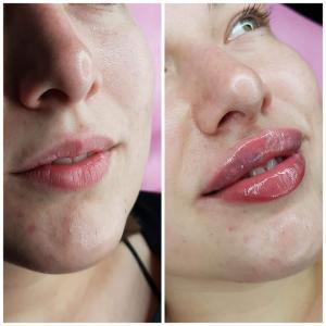 kosmetologia estetyczna 14