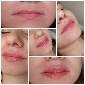 kosmetologia estetyczna 4
