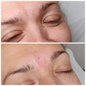 kosmetologia estetyczna 6