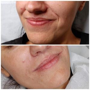 kosmetologia estetyczna 7
